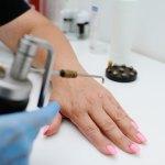 Dermatologia Cirúrgica - Criocirurgia